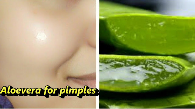 aloevera for pimple