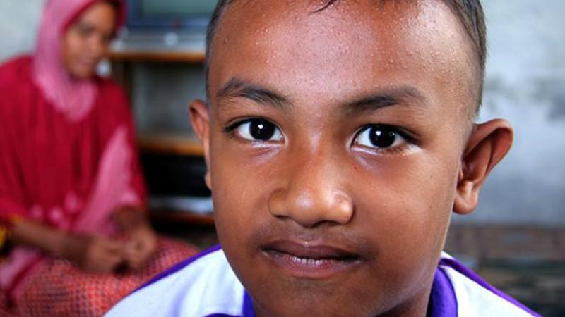 Muzakir Lutfi (5) penderita kailanan hormon tulang di Aceh