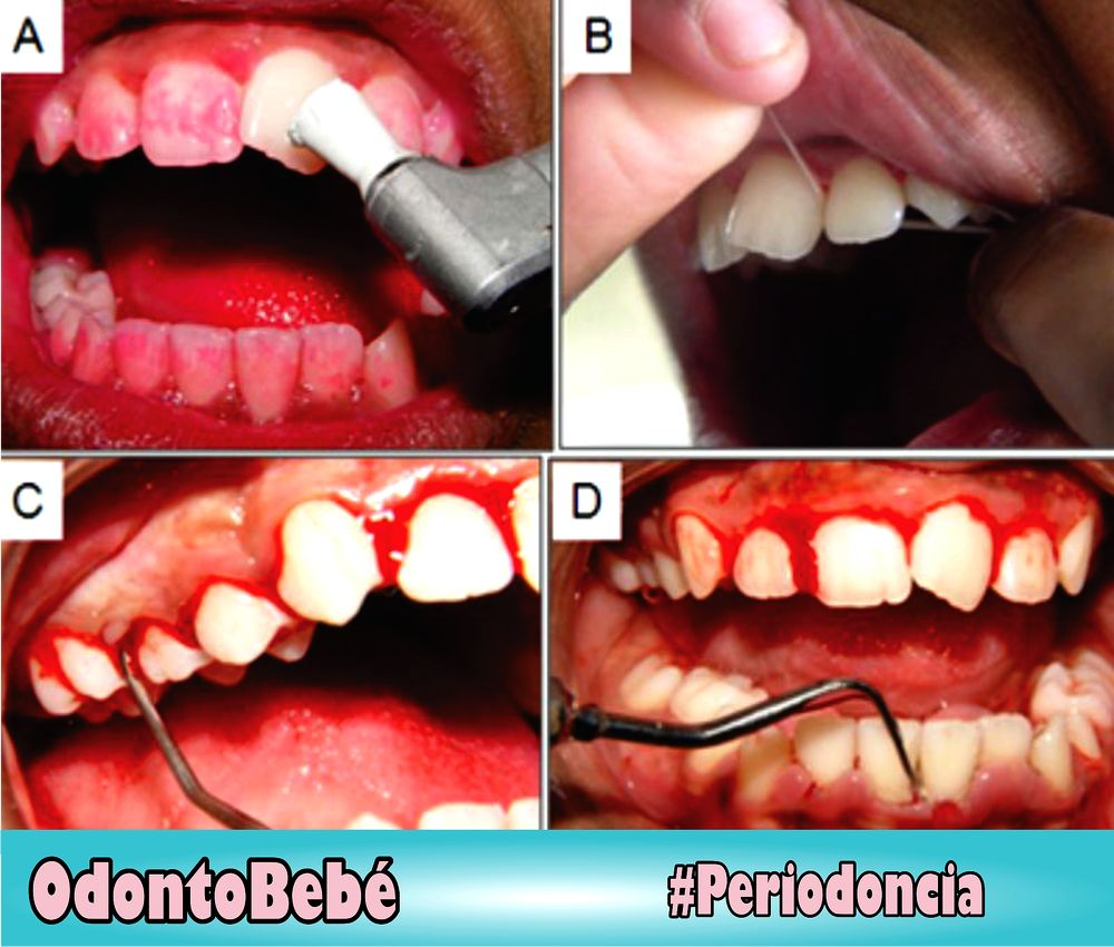 gingivitis-odontopediatria