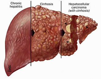 Τι προκαλεί η ιογενής Ηπατίτιδα; Πώς μεταδίδεται, πώς ...