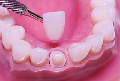 Bọc răng sứ ở đâu tốt nhất?