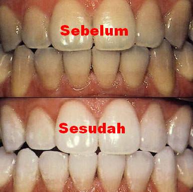 Cara Memutihkan Gigi Kuning Secara Alami Dan Mudah Melakukannya