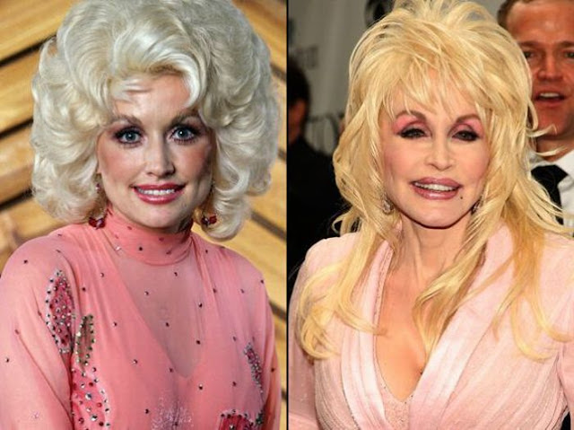 Dolly Parton Antes y Despues