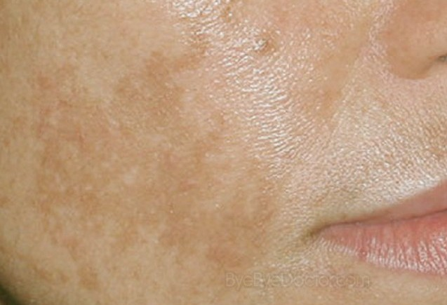 Remove Brown Spots On The Skin: Help Home Remedies ...