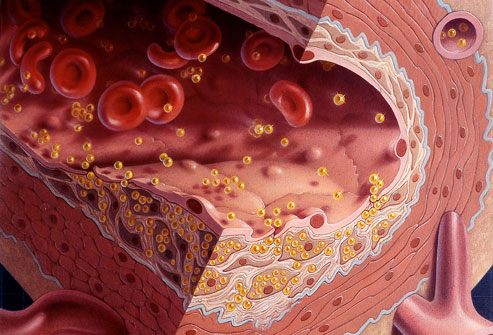 kolesterol terdiri dari HDL, LDL dan Trigilserida