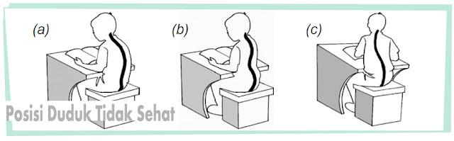 Kebiasaan sikap duduk yang salah  gambar a) lordosis, b) Kifosis, c) Skoliasis