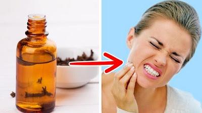 obat sakit gigi alami vanila