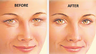 Natural Remedy to Fix Sagging Eyelids