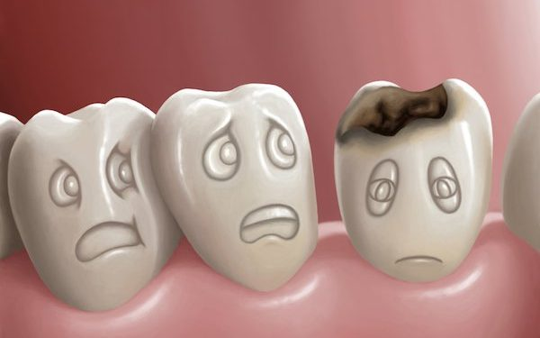 5 Simple Tips To Never Have Cavities