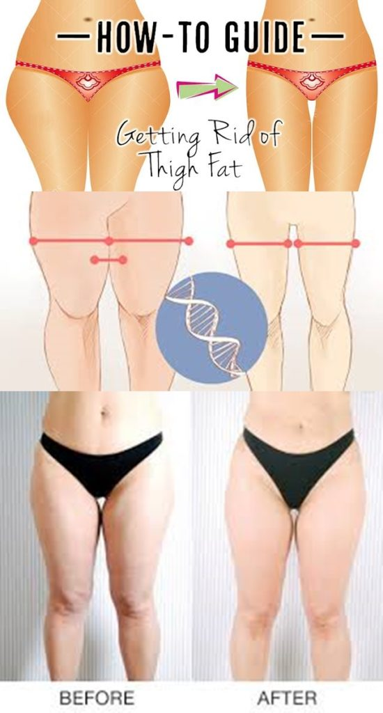 Get Rid Inner Thigh Fat 72