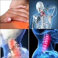Cara Menyembuhkan Pengapuran Tulang Leher