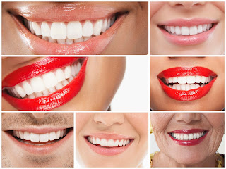 miami beach cosmetic dentist