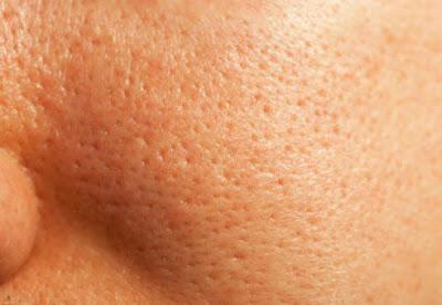 Pores propres