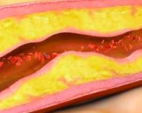 12 Macam Penyakit Kulit Akibat Diabetes, dan Cara Mengatasi