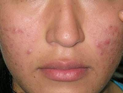 tips ampuh mengatasi wajah kering dan berjerawat