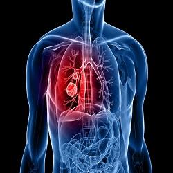 Evolução das terapias contra o câncer de pulmão