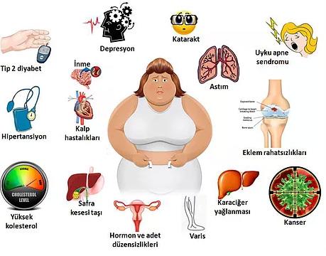 Egzersiz ile obezite tedavi