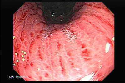 Cronica gastritis moderada inactiva antral