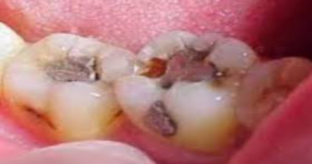 Ulat gigi, gigi berlubang, sakit gigi