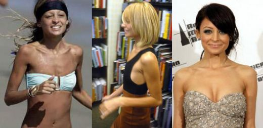 Before after breasts