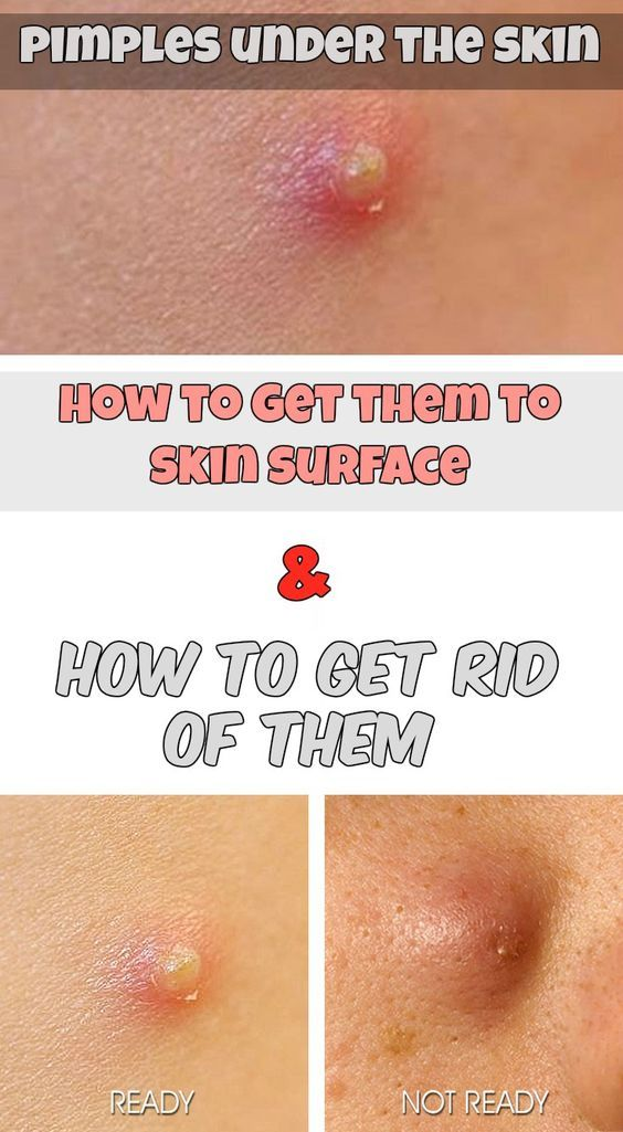 Fastest Ways to Get Rid of a Pimple