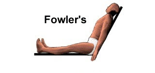Fowler's position, Semi-fowler's, High-fowler's, Low-fowler's position