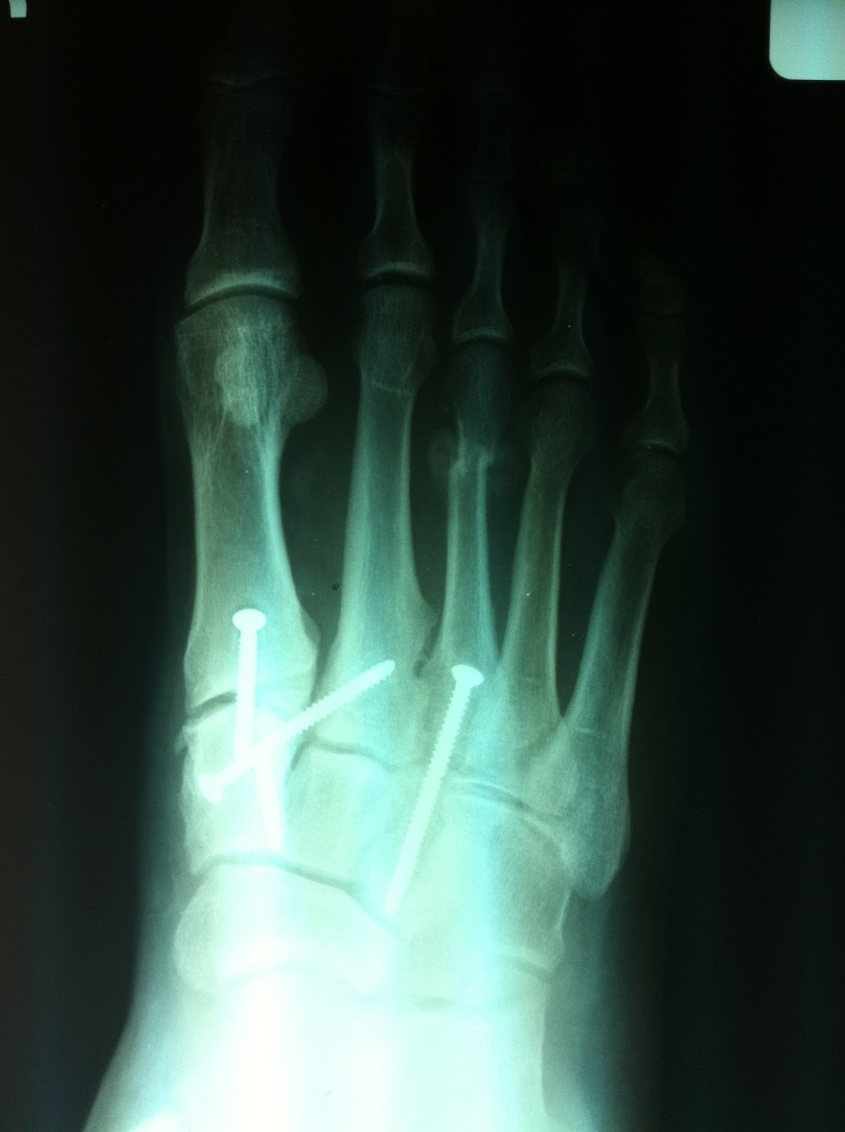 Podiatry Shoe Review: Scared Straight: Foot X-Rays that will