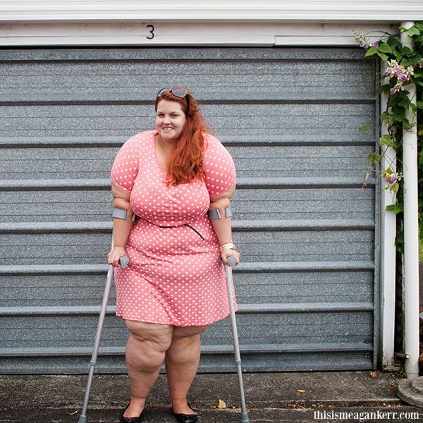 9b90d8175eae Crutch Plus of the Week  Megan Kerr