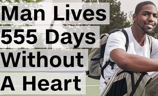 Man lives 555 days without a heart