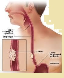 Esophageal cancer prognosis