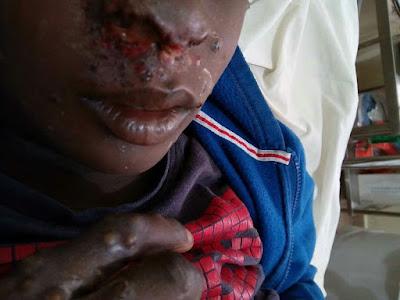 Panic as Monkey Pox Disease storms Lagos, 2 people down