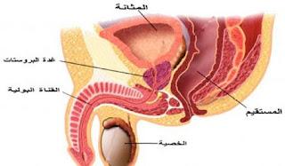 سرطان البروستات