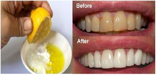 Cara Memutihkan Gigi Dengan Jeruk Nipis Tisu Kesehatan Wanita