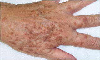 Daily Health: How T o Get Rid Of Liver Spots