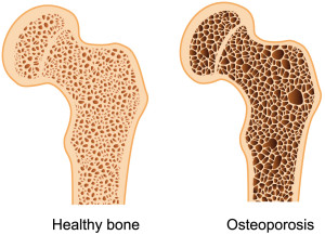 tulang yang terkena osteoporosis