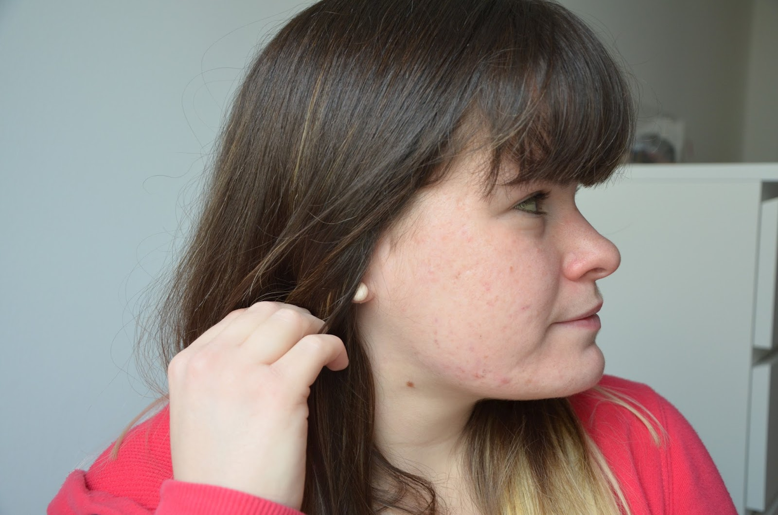 bilan, 1 an de traitement contre l'acné côté droit
