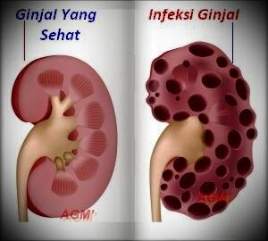 Penyebab Kencing Darah