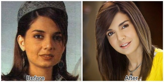 Pakistani Actresses After Plastic Surgery Pakistan Hotline
