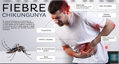 Obat Penyakit Chikungunya Resep Dokter di Apotiik