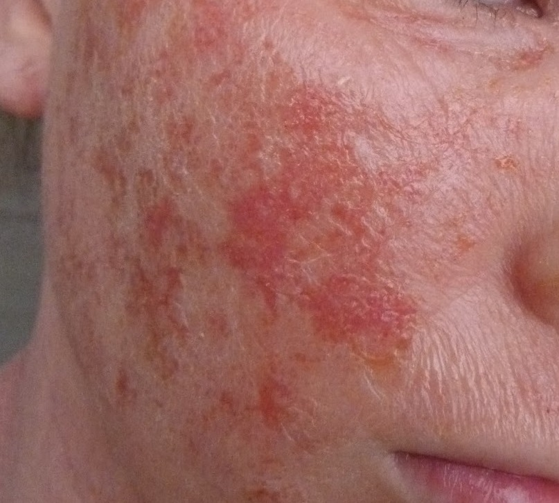 Photos Of Eczema On Adults Face  Treatment For Eczema -9737