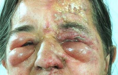 Cara Mengobati Herpes Di Sekitar Mata