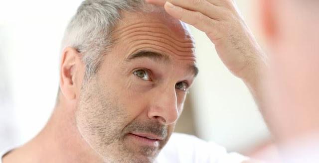 Erkeklerde Saç Kepeklenmesi