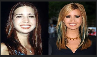 شاهدوا.. هكذا كانت ابنة ترامب المثيرة قبل عمليات التجميل! تحول هائل في شكلها...