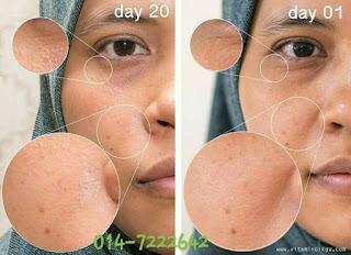 Testimoni Youth Skincare Shaklee 1