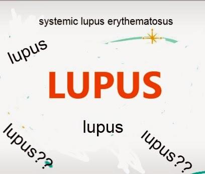 ciri-ciri gejala penyakit lupus