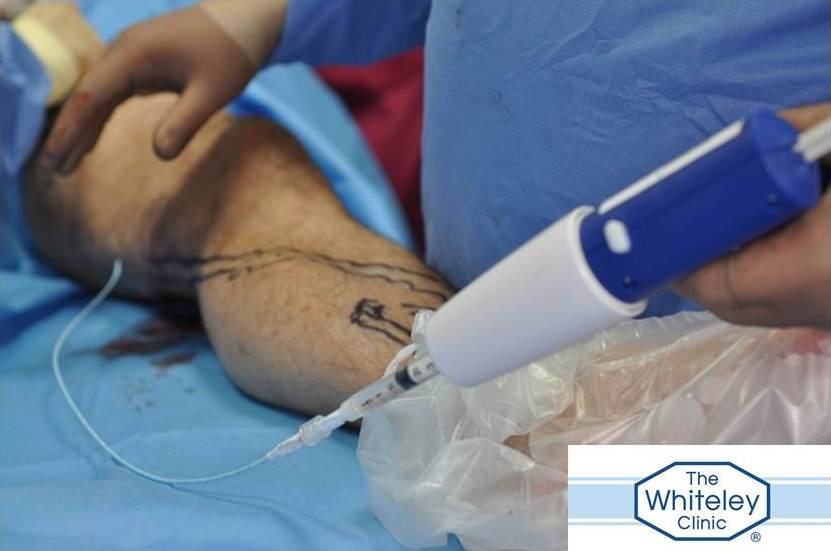 Symptoms Varicose Veins Behind Knee