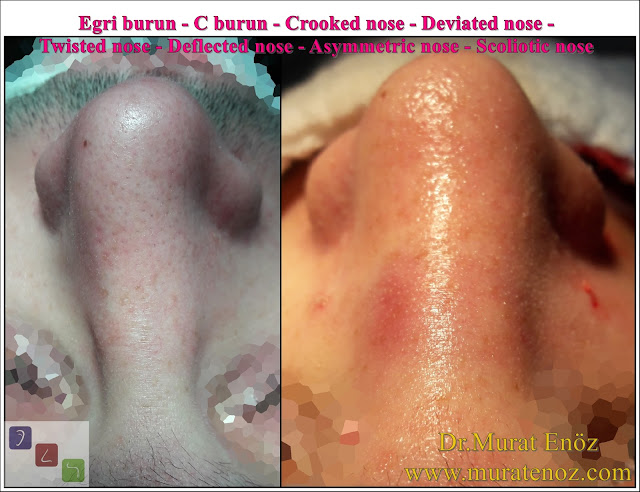 C burun - S-shaped crooked nose deformity -  Rhinoplasty Istanbul - Rhinoplasty in Istanbul - Rhinoplasty Turkey - Rhinoplasty in Turkey – Rhinoplasty doctor in Istanbul – ENT doctor in Istanbul - Nose Job in Istanbul - Before and after rhinoplasty photos