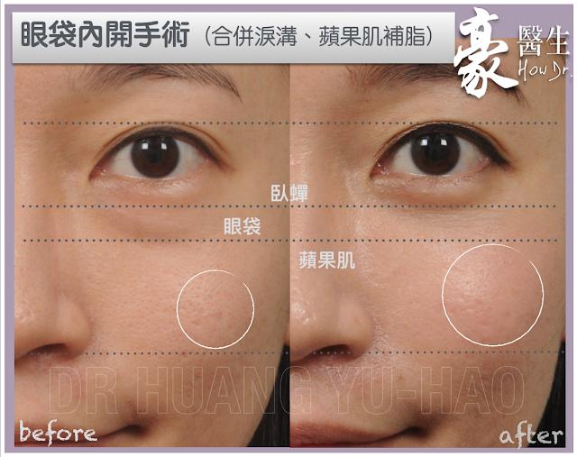 高雄眼袋整形內開手術-高雄自體脂肪豐頰