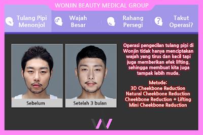 Operasi Kontur Wajah di Operasi Plastik Wonjin Korea Paling Rekomen