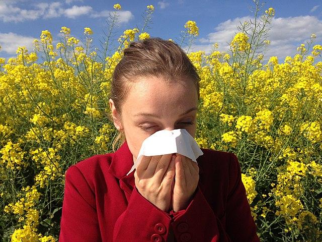 Manajemen Keperawatan Alergi